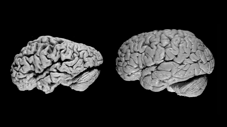 Alzheimer - beyinin taleyi